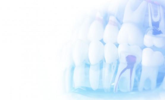 Záchovná stomatologie